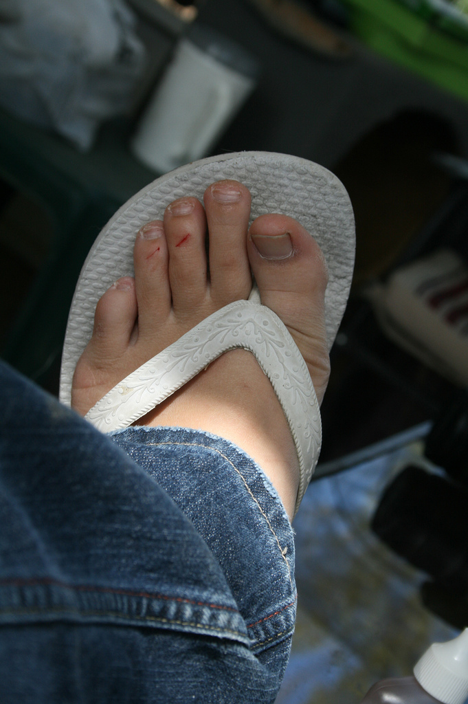 my toes and a knife got in a fight
